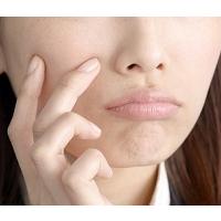 乾燥肌は食べ物で改善出来る!?乾燥肌の原因と対処法は!?
